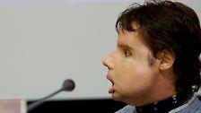 Mit dem Antlitz eines Toten: Erfolgreiche Gesichtstransplantationen