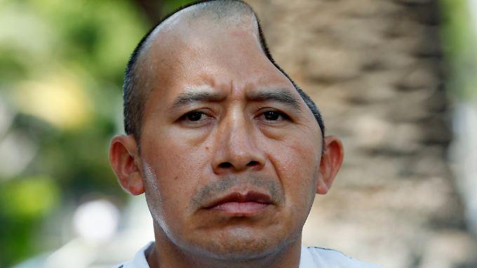 Antonio Lopez Chaj verlor bei einer Kneipenschlägerei Teile seines Schädels und Gehirns.