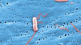Legionellen unter dem Mikroskop.