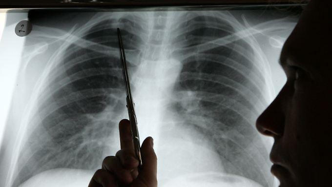 Die Einnahme von Antioxidantien zur Prävention von Lungenkrebs könnte einen gegenteiligen Effekt haben.
