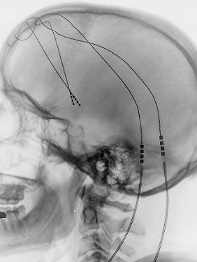 Patient mit Elektroden im Hirn.