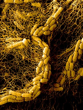 Auch ein Teil von Schauers Sammlung: Alkanivorax borkumensis. Dieses Bakterium ist besonders geeignet, um das Meer von Öl zu befreien.