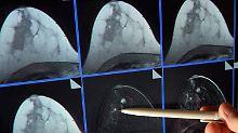 Hoffnungen und Grenzen: Was Mammografie-Screening kann