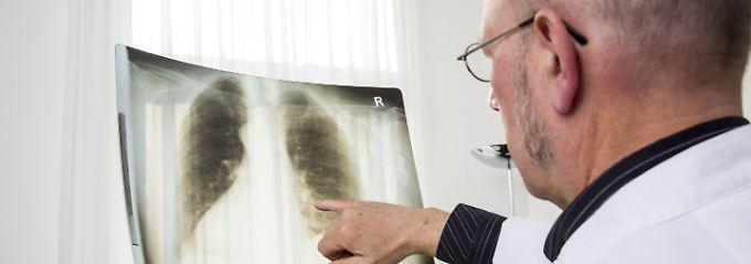 Mit Röntgenuntersuchungen kann der Zustand der Lunge überprüft werden.