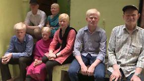 Diskriminierung weißer Inder: Albino-Familie kämpft für ein normales Leben