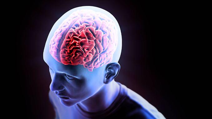 Kurzschluss im Gehirn: Rund 270.000 Menschen erleiden pro Jahr in Deutschland einen Schlaganfall.
