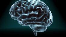 Den Forscher standen für die Studie Daten des Humanen Konnektom-Projektes (HCP) zur Verfügung.