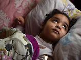 Die fünf Jahre alte Aliana leidet an der chronischen und unheilbaren Maserngehirnentzündung SSPE. Foto: Uwe Zucchi