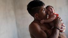 In Brasilien werden Tausende Fehlbildungen bei Neugeborenen mit dem Virus in Verbindung gebracht.