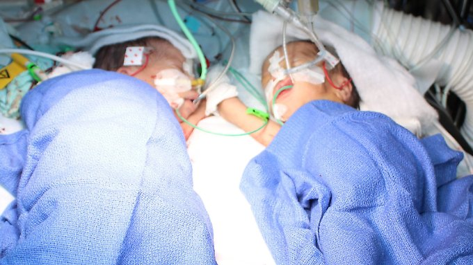 Die beiden Mädchen sind nach der fünfstündigen Operation wohlauf.