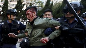 Die Polizist führt einen verletzten Demonstranten ab.