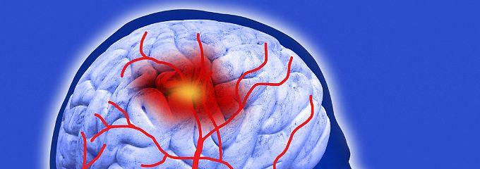 Computergrafik eines Schlaganfalls im menschlichen Gehirn.