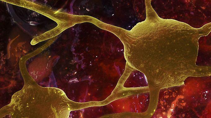 Bei MS werden die Hüllen der Nervenzellen zerstört.