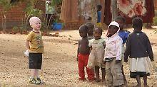 Albinos müssen auch stärker vor intensiver Sonnenstrahlung geschützt werden.
