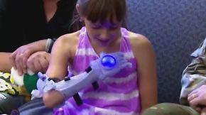 Ein Unterarm in Hellblau: Neunjährige bekommt Eiskönigin-Prothese