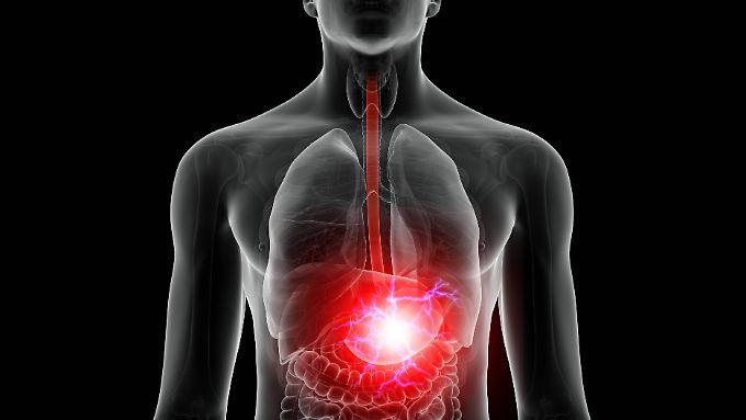 Bei Sodbrennen steigen Verdauungssäfte vom Magen bis in den Mund.