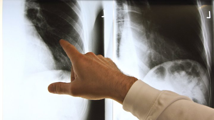 Ein Rippenbruch wird mit einem Röntgenbild diagnostiziert.