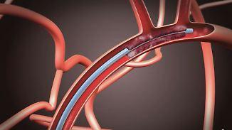Neue Therapie bei Schlaganfall: So funktioniert die Thrombektomie