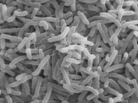 """Robert Koch gab 1884 den Bakterien wegen ihrer Form den Namen """"Kommabazillen""""."""