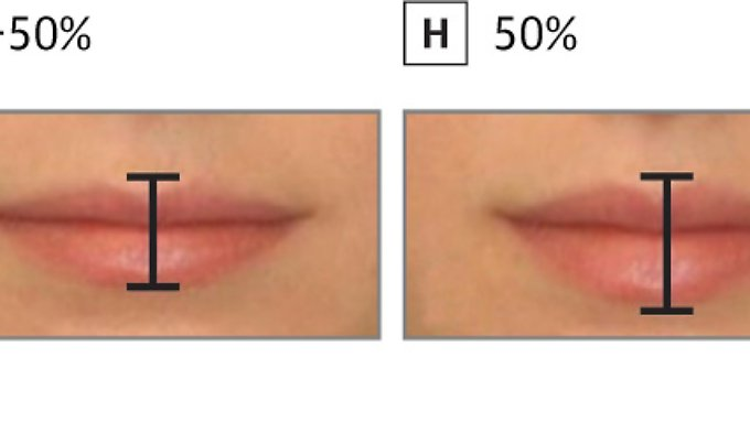 Probanden wurden verschiedene Lippengrößen präsentiert, um die Attraktivität zu ermitteln.