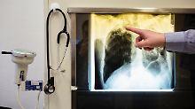 So zeigt sich Tuberkulose im Röntgenbild.