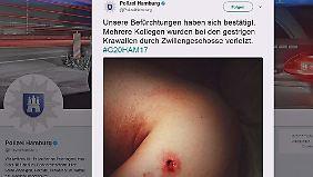 Augenzeugen der G20-Krawalle: Polizei twittert Verletzungen von Einsatzkräften