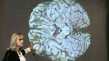 Pathologen sind erschüttert: Kopfstöße können Hirnschäden erzeugen