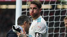 Für Sergio Ramos verlief der Abend doppelt bitter - kein Sieg, dafür aber eine lädierte Nase.