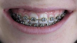Kritik an hohen Kosten: Was bringen Zahnspangen?