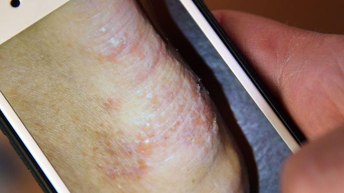 Ein von Krätze befallener Fuß: Die Hautkrankheit geht mit unerträglichem Juckreiz einher - Tag und Nacht.
