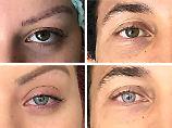 Aus Braun wird Hellblau: Arzt ändert Augenfarbe mit Lasertechnik