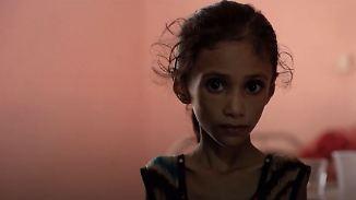 Lebensbedrohliche Unterernährung: Kinder im Jemen leiden seit Jahren Hunger