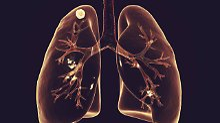 Trotz multiresistenter Keime: Neues Medikament heilt Tuberkulos-Patienten