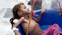 """Massensterben im Jemen: """"Kinder wie Amal gibt es tausendfach"""""""