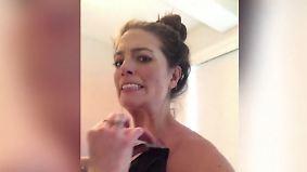 Promi-News des Tages: Dieser Beauty-Trick endet für US-Model schmerzhaft