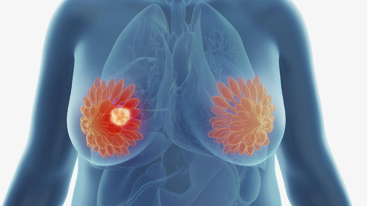 Forscher widerlegen Lehrmeinung zu Krebs