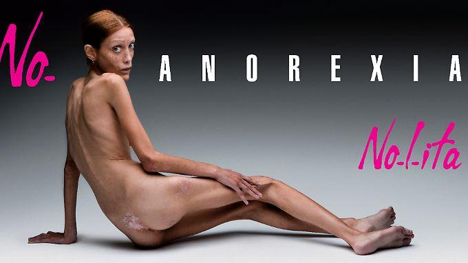 Toscani fotografierte unter anderem für eine Kampagne gegen Anorexie das abgemagerte französische Model Isabelle Caro. Sie starb im Oktober 2010 an der Essstörung.
