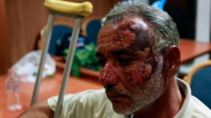Prekäre Lage in Misrata: Gaddafi gestattet UN-Hilfslieferung