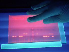 Untersuchung von fluoreszierender DNS von EHEC-Bakterien in einem Labor des Robert-Koch-Instituts.