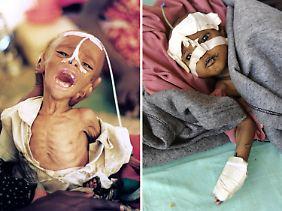 Der Hunger ist immer noch da: Die Bildkombo zeigt ein Kleinkind, das bei einer Hungerkatastrophe 1991 im äthiopischen Flüchtlingslager Doronaji künstlich ernährt  (l) und ein somalisches Kind, das bei der aktuellen Hungerkatastrophe im Flüchtlingslager Dadaab in Kenia medizinisch versorgt wird.