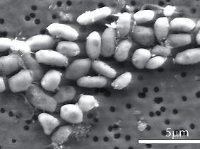 Bakterien unter einem Elektronenmikroskop.
