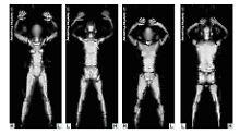 Die Röntgenbilder, die mit Hilfe eines Ganzkörper-Scanners entstanden sind, zeigen weibliche und männliche Personen ohne Kleidung (undatiertes Handout).