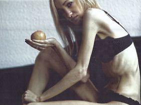 Hanna in der schlimmsten Phase ihrer Magersucht.